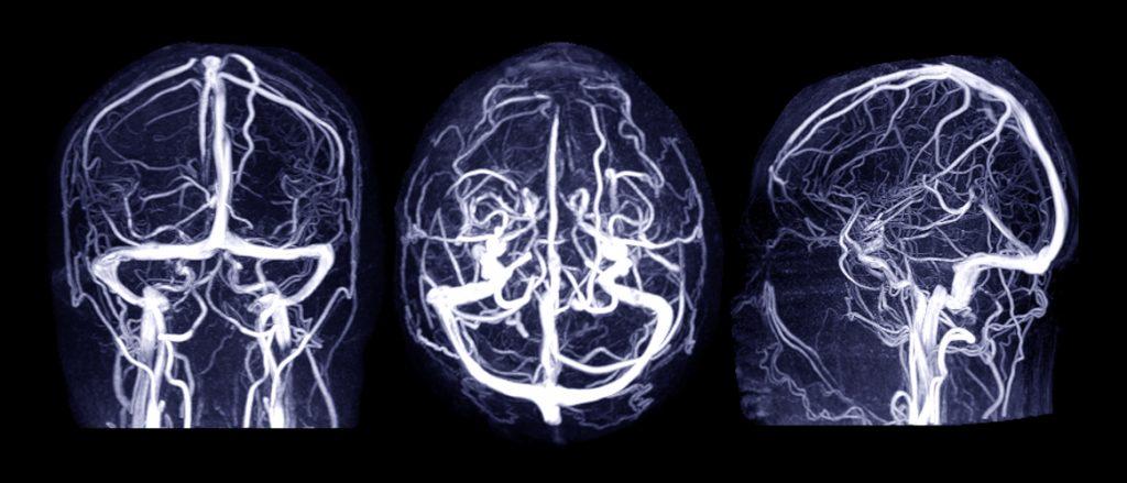 CT_Angiographie