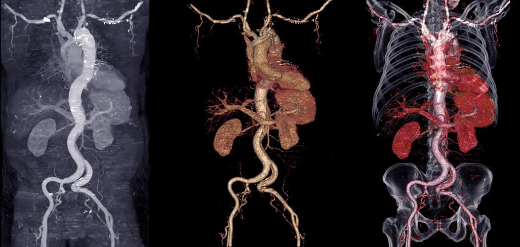 3D CT der Aorta nach Gabe von jodhaltigem Kontrastmittel